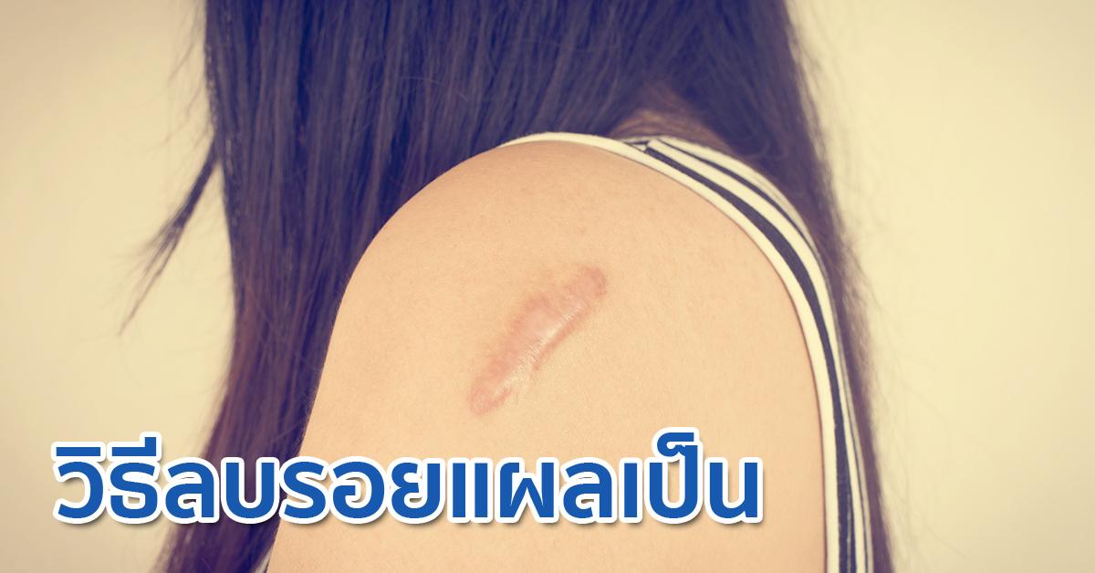 remove permanent scars