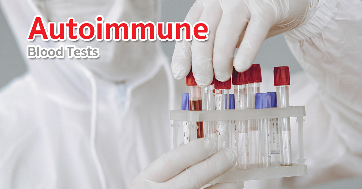 autoimmune blood tests